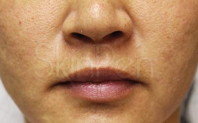 SkinPen® Precision Micro-Needling   Clear Skin Victoria